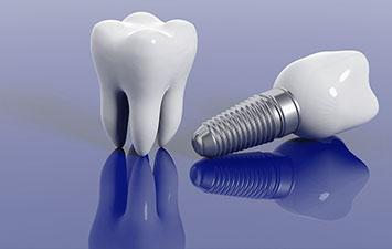 Is a Dental Implant Treatment Better Than a Bridge?